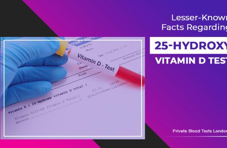 Lesser-Known Facts Regarding 25-Hydroxy Vitamin D Test