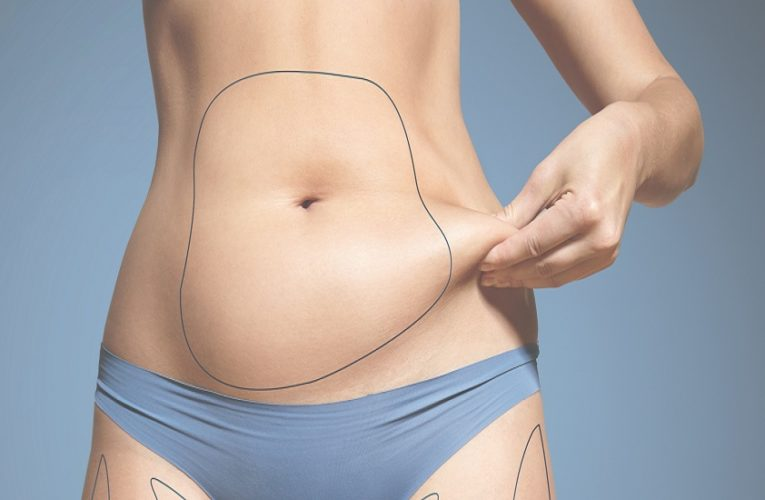 CoolSculpting® – The Gold Standard in Non-Invasive Fat Reduction