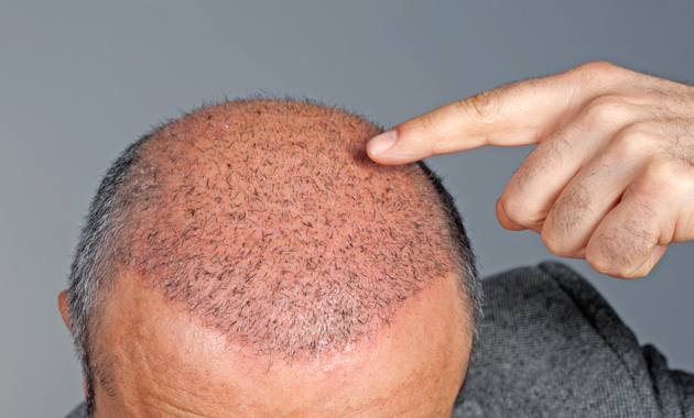 Can You Continue Sports Activity After Hair Transplant?