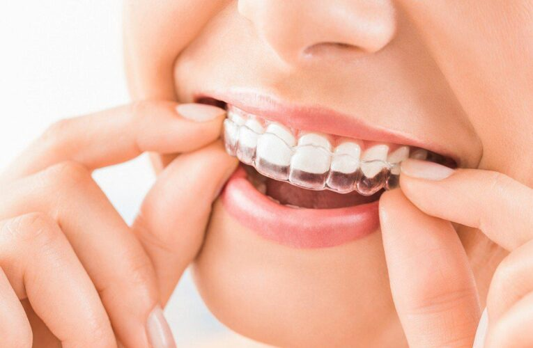 All you need to know about Invisalign