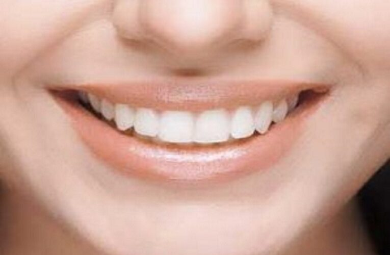 Teeth Whitening Sensitivity – Causes and Treatment