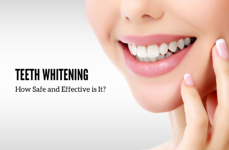 Teeth Whitening: How Safe and Effective is It?
